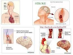 obat stroke tradisional alami